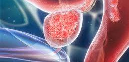 Du sport pour lutter contre le cancer de la prostate